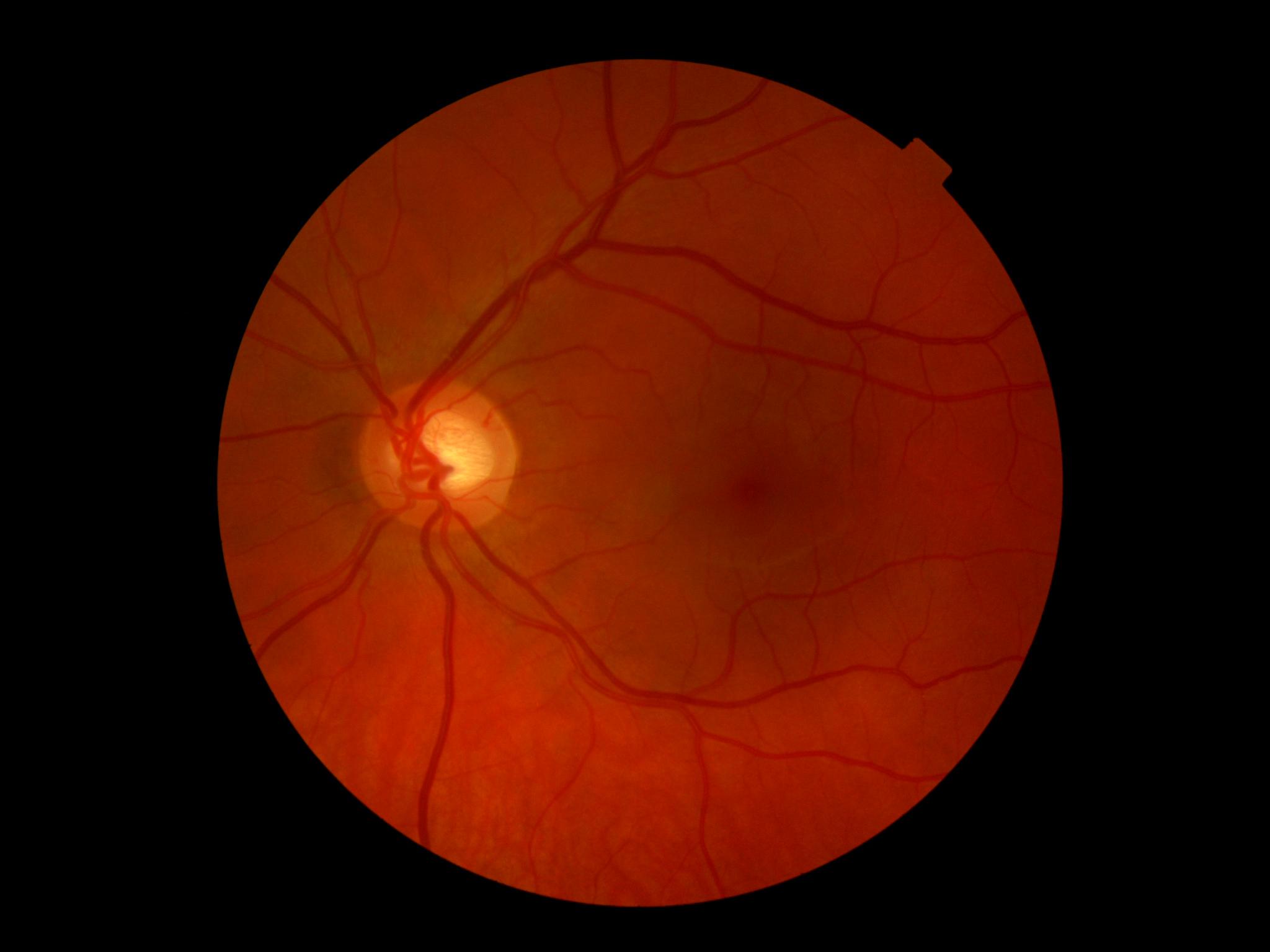 Очки для зрения цены в астрахани